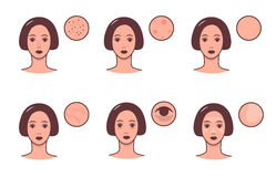Set of female faces with various skin conditions and problem. Skincare and dermatology concept. Vector colorful Stock Image