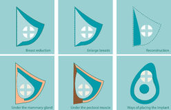 Set of icons for breast surgery Stock Image