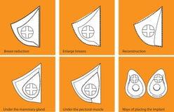Set ikony dla piersi operaci Zdjęcia Stock