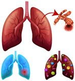 A Set of Lung Condition. Illustration vector illustration