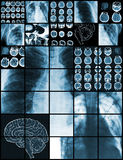 Set of medical test images, diagnostics concept.  stock photography