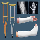 Set of medicine traumatology objects. Treatment of bone fracture. Plaster splint, crutch, x-ray.  objects. Vector Royalty Free Stock Images