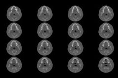 Set of MRI scanner slices of dental part of human male scull with multiple problems on white background. Top-down projection royalty free stock image