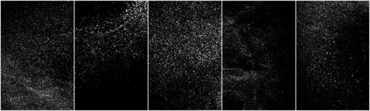 Free Set Of Distressed White Grainy Texture Royalty Free Stock Image - 178875716