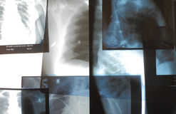 Set of radiographs on X-ray view box Royalty Free Stock Photography