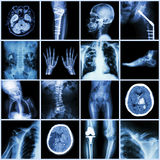 Set of X-ray multiple part of human,Multiple disease,orthopedic,surgery. (Stroke,Bone fracture,Orthopedic operation,Kidney stone,Arthritis,Gout,Pulmonary Royalty Free Stock Photo
