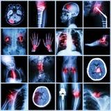 Set of X-ray multiple part of human,Multiple disease,orthopedic,surgery (Stroke,Bone fracture,Orthopedic operation,Kidney stone,Ar. Thritis,Gout,Pulmonary Stock Photo