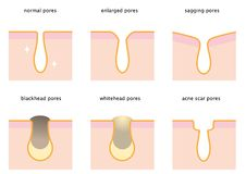 Set of skin pores: normal, sagging, enlarged, blackhead, whitehead  and acne scar. Beauty and skin care concept Royalty Free Stock Photography
