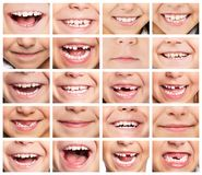 Set of smiles. Faces of smiling children. Set of kids smiles. Healthy teeth. Smile stock images