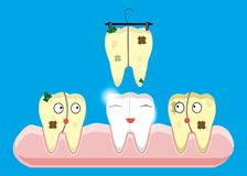 Set of teeth cleaning and whitening concepts. Scaler, laser, mechanical, paint. Cartoon vector dental royalty free illustration