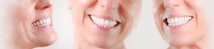 Set trzy widoku naturalny uz?bienie caucasian kobieta zdjęcia stock