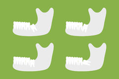 Set of type of wisdom tooth with mandible or lower jaw vector illustration
