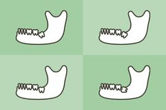 Set of type of wisdom tooth in mandible or lower jaw Stock Images