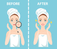 Before-After set of upset and happy woman with female facial skin problems needs to care about: acne, pimples. Stock Photo