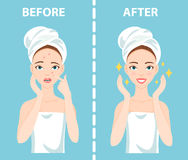 Before-After set of upset and happy woman with female facial skin problems needs to care about: acne, pimples. Stock Photos