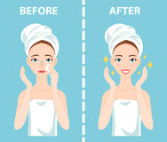 Before-After set of upset and happy woman with female facial skin problems needs to care about: blackheads, clogged nose Stock Photo