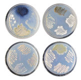 Set of varity colony bacteria (actinomycetes) morphology on agar Royalty Free Stock Photos