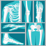 Set of xray of human. Royalty Free Stock Images