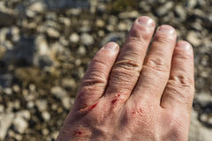 Several small wound on his hand Royalty Free Stock Photo