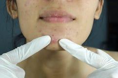 Severe acne. Stock Photos