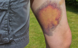 Severe bruise Royalty Free Stock Image