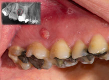 Severe gingivitis, visible on x-ray. A severe case of gingivitis, including a purulent gingival fistula. Comparative section pinpointed on the corresponding x stock image