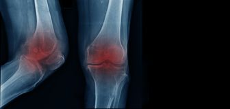 OA knee x-ray image. Severe knee arthritis, OA knee x-ray stock photography