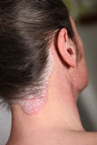 Severe psoriasis neck and neck. As well as in the ear-closeup Stock Photography