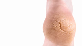 Severely cracked heel isolated on white with copy space. Closed-up of a badly cracked heel. Severe crack running diagonally with further deep cracks and dry Stock Photos