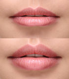 plump lips after filler injection Stock Photos