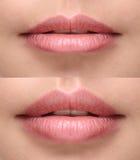 Sexy pralle Lippen nach Füllereinspritzung Stockfotos