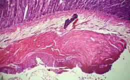 Sezione dell'intestino tenue sotto il microscopio Fotografia Stock