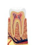 Sezione trasversale di un modello anatomico del dente fotografia stock libera da diritti