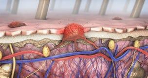 Sezione trasversale di una pelle malata con il melanoma che entra nella circolazione sanguigna e nel tratto linfatico illustrazione di stock