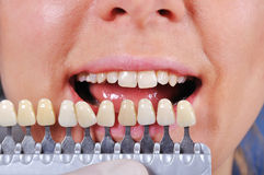 Shade determination tooth Royalty Free Stock Photo