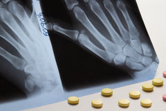 Shadowgram of the left and right hands and  pills Stock Image