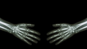 Shake hands . X-ray normal human hands ( blank area at upper side ) stock photo