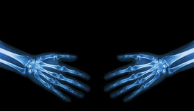 Shake hands . X-ray normal human hands   ( blank area at upper side ) Royalty Free Stock Images