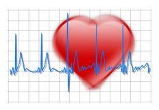Shaking Heart beat Stock Photography