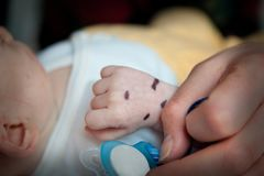 Shallow depth of field of hand of a sick infant patient.. Shallow depth of field of hand of a sick infant patient. Mark on the hand with a pacifier and adult Stock Image