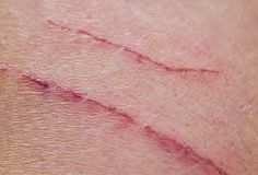 Shallow inflamed scratches on human skin. Two shallow inflamed scratches on human skin Stock Photos