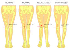 Shapes of the  legs.Normal and curved legs.Knock knees.Bowed leg. Vector diagram. Shapes of the  legs. Normal and curved legs. Knock knees. Bowed legs. Genu Royalty Free Stock Photography