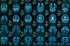 Sharp ct scan Royalty Free Stock Photos