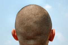 Shaved Head Blue Sky. A closely shaved male head against a blue sky.  This version also showing the ears Stock Photography