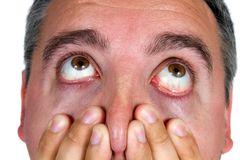 Shocked Eyeballs Face. Eyeballs of man as he looks up in surprise and shock Stock Photo