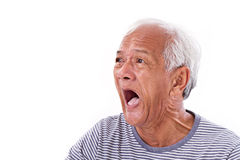 Shocked, stunned, unhappy old man with surfer's eye or pterygi Royalty Free Stock Photography