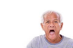 Shocked, stunned, unhappy old man with surfer's eye or pterygi Royalty Free Stock Image