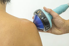 Shockwave treatment on shoulder. Shockwave therapy increases the growth of new blood vessels and is for instance used for treating calcific tendonitis or chronic Stock Photography