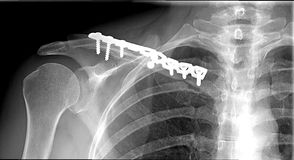 Sholder fraction Clavicle xray. Clavicle fraction ensured with metal splint stock image