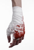 Shook his bloody hand in a bandage, bloody bandage, fight club, street fight, bloody theme, white background, isolated Stock Photography